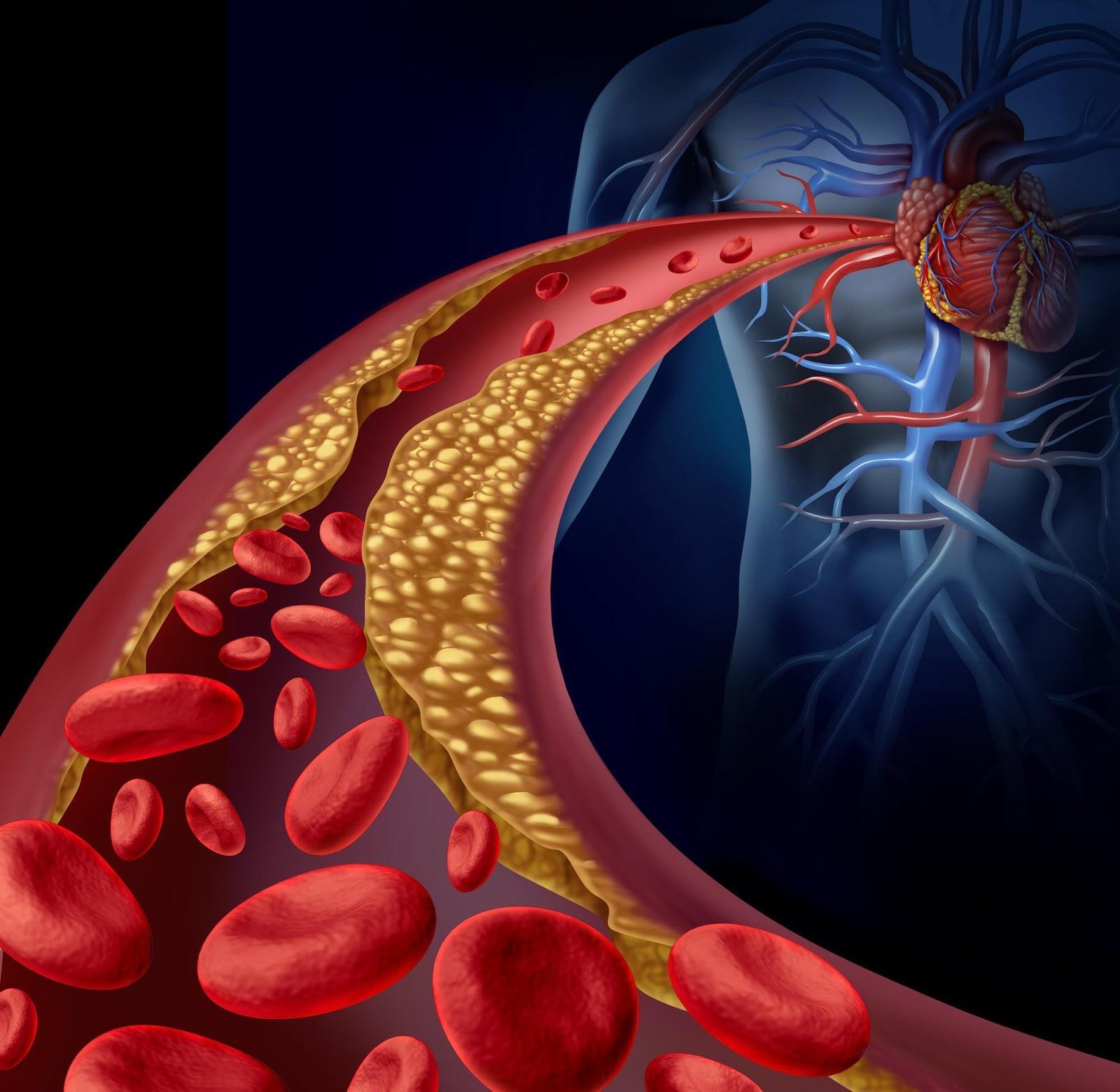 Una arteria obstruida